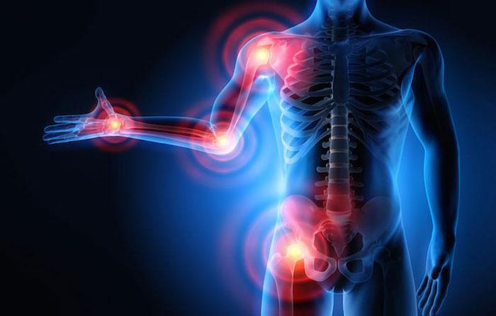 حقایقی در خصوص درد مفصلی