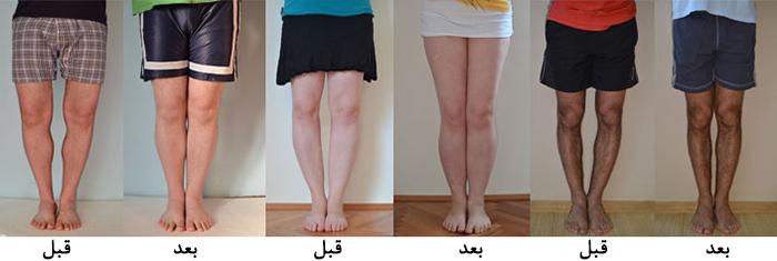 نتیجه تصویری برای پاهای پرانتزی