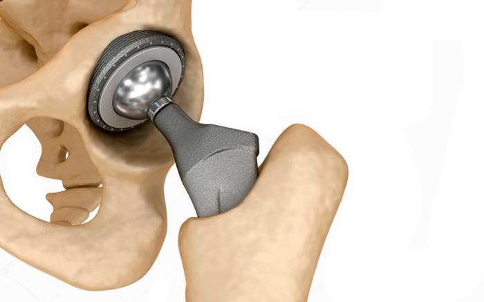 آنچه در مورد جراحی تعویض مفصل لگن باید بدانید