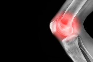 روش های درمانی آرتروز