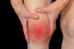 چه نوع آرتریتی دارید؟