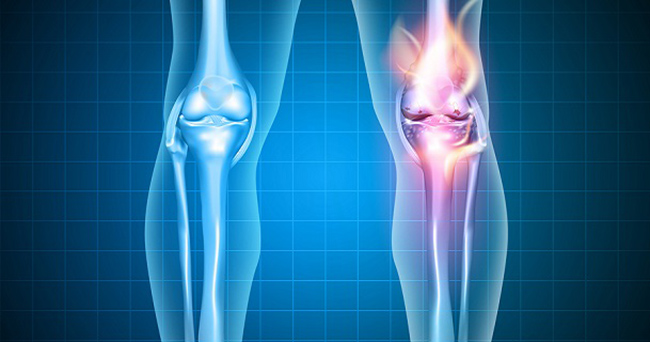 Burning knee painful knee and normal knee joint abstract design. Human legs on a blue checkered background.