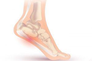 التهاب کف پا نشان چیست؟