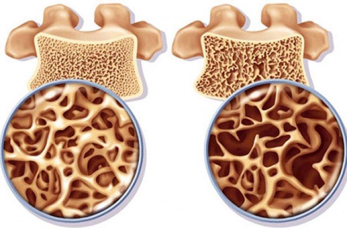 روموزوزوماب ؛ درمانی جدید برای پوکی استخوان